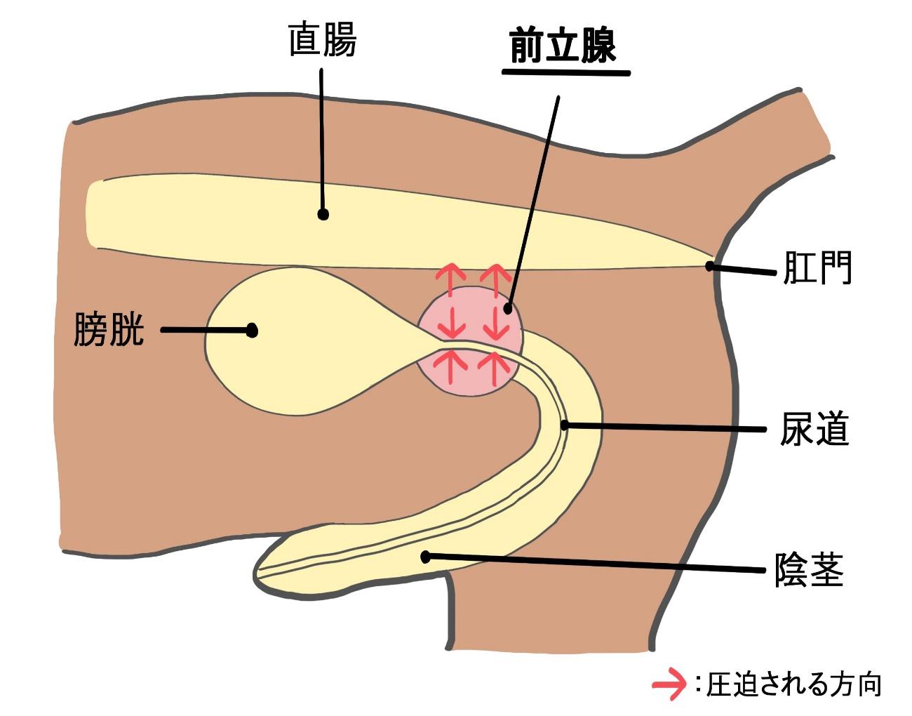 肥大 予防 前立腺 前立腺肥大症の原因と治し方|福岡県のすやま泌尿器科クリニック